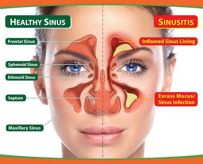 penyebab dan gejala sinusitis